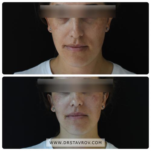 """Запълване на слъзна падина - Dr. <a href=""""https://artactionbg.com/366c8368b2/"""">крем против бръчки евелин</a>. Stavrov Aesthetics"""
